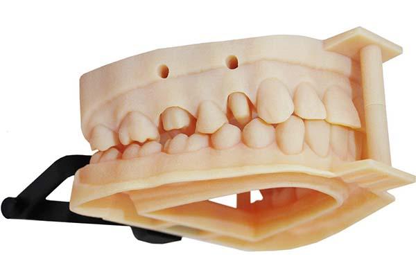 Best 3D Printer for Dentistry 4