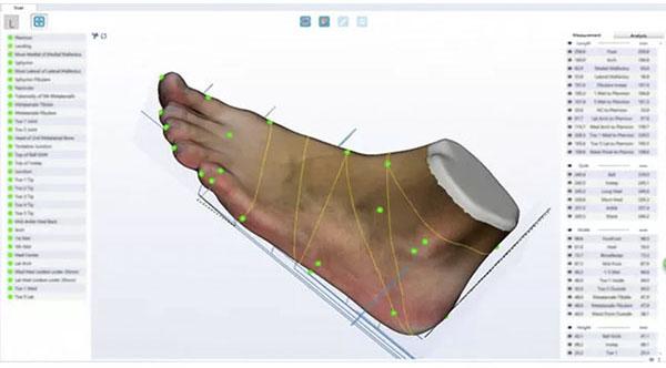 ScanPod3D Orthopedic 3D Scanners Review 12