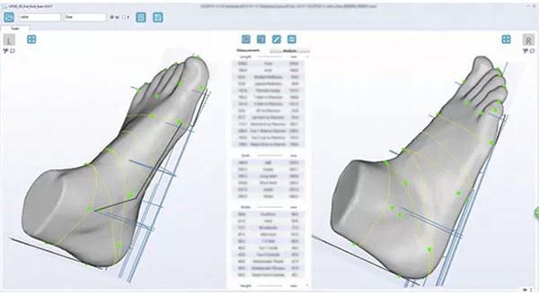 ScanPod3D Orthopedic 3D Scanners Review 13