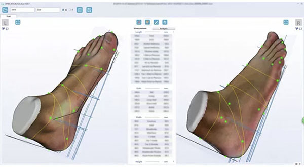 ScanPod3D Orthopedic 3D Scanners Review 14
