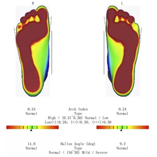 ScanPod3D Orthopedic 3D Scanners Review 15